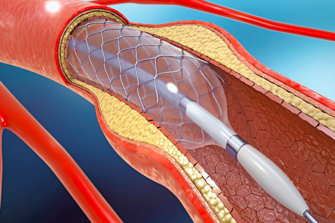 stent cardiaco