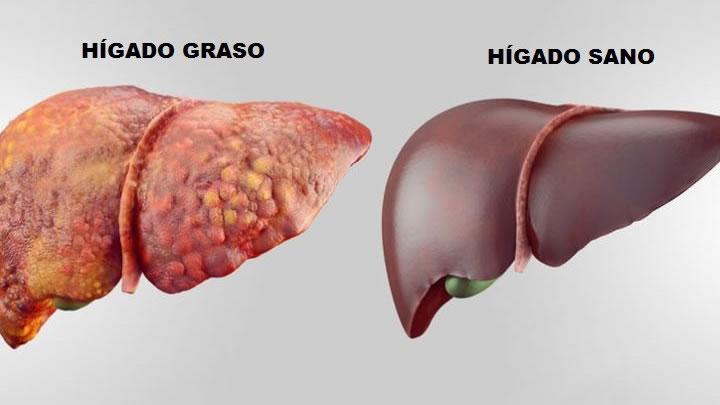 Los 6 alimentos que combaten el hígado graso | Salud | La Revista ...