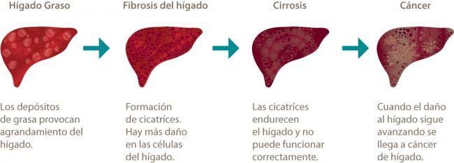 higado con cirrosis y cancer