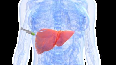 Indicaciones de la biopsia hepática